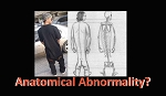 Anatomical Abnormality